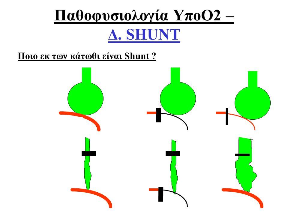 Οξ. Αναπνευστική ΑνεπάρκειαΑθ. Πρεκατές NORMAL ΝΕΚΡΟΣ ΧΩΡΟΣ V/Q SHUNT ΣΙΓΗ V/Q Παθοφυσιολογία ΥποΟ2 – Δ. SHUNT Ποιο εκ των κάτωθι είναι Shunt ?