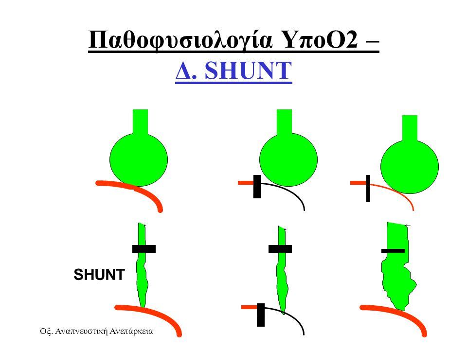 Οξ. Αναπνευστική ΑνεπάρκειαΑθ. Πρεκατές SHUNT Παθοφυσιολογία ΥποΟ2 – Δ. SHUNT