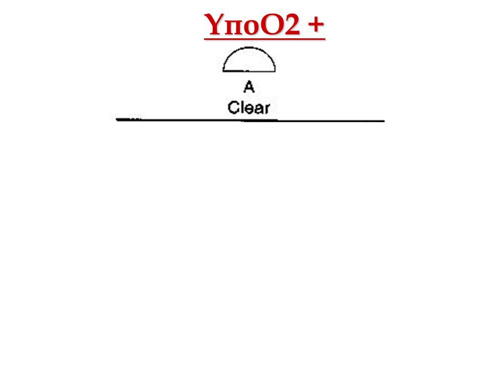Οξ. Αναπνευστική ΑνεπάρκειαΑθ. Πρεκατές ΥποΟ2 +