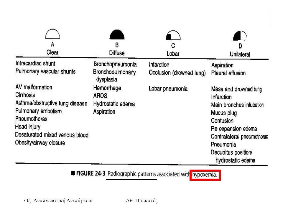 Οξ. Αναπνευστική ΑνεπάρκειαΑθ. Πρεκατές