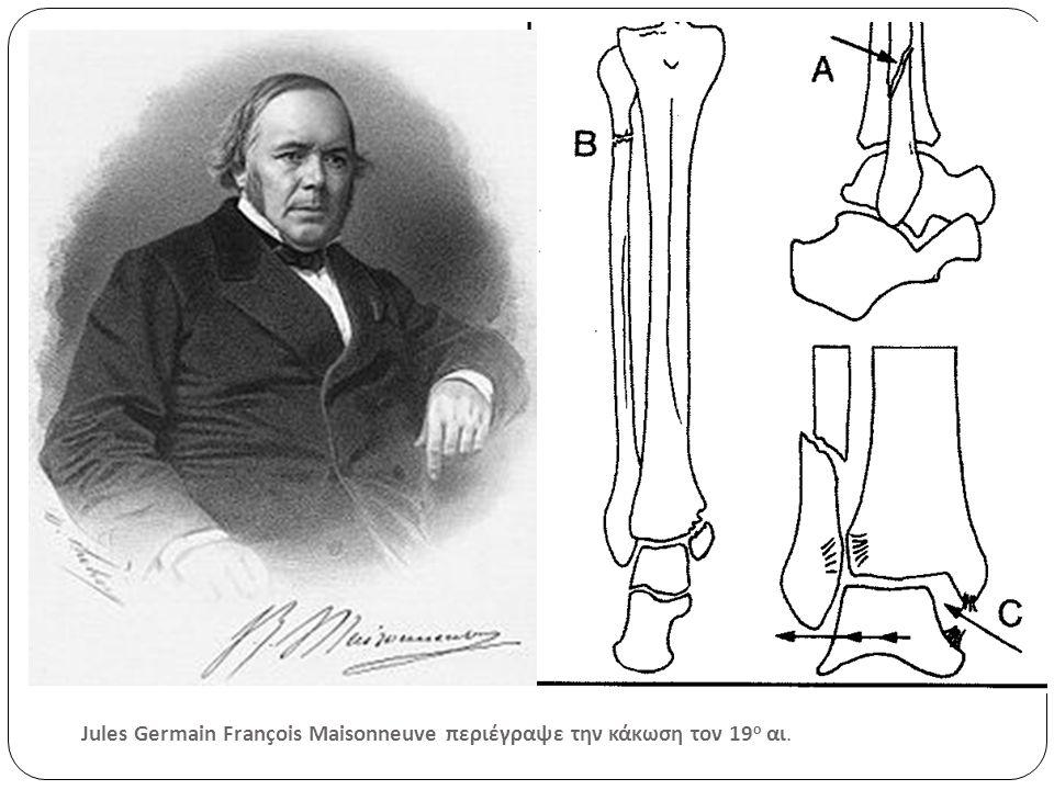 Jules Germain François Maisonneuve περιέγραψε την κάκωση τον 19 ο αι.