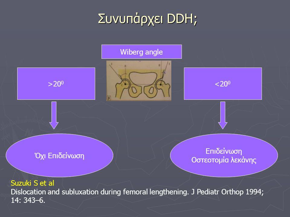 Συνυπάρχει DDH; Wiberg angle <20 0 >20 0 Επιδείνωση Οστεοτομία λεκάνης Όχι Επιδείνωση Suzuki S et al Dislocation and subluxation during femoral length