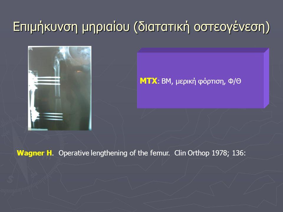 Επιμήκυνση μηριαίου (διατατική οστεογένεση) ΜΤΧ : BM, μερική φόρτιση, Φ/Θ Wagner H. Operative lengthening of the femur. Clin Orthop 1978; 136: