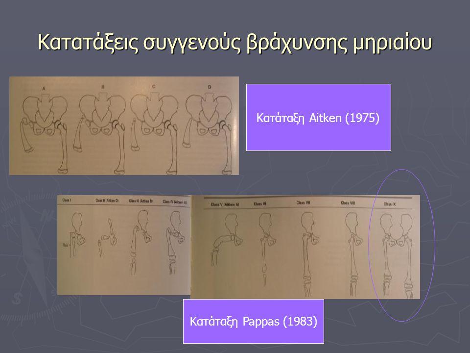 Κατατάξεις συγγενούς βράχυνσης μηριαίου Κατάταξη Aitken (1975) Κατάταξη Pappas (1983)