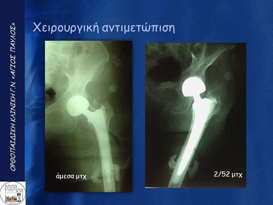 ΟΡΘΟΠΑΙΔΙΚΗ ΚΛΙΝΙΚΗ Γ.Ν. «ΑΓΙΟΣ ΠΑΥΛΟΣ » Χειρουργική αντιμετώπιση άμεσα μτχ 2/52 μτχ