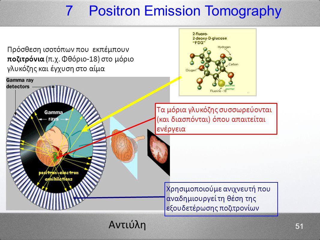 Αντιύλη 51 Πρόσθεση ισοτόπων που εκπέμπουν ποζιτρόνια (π.χ. Φθόριο-18) στο μόριο γλυκόζης και έγχυση στο αίμα 7 Positron Emission Tomography Τα μόρια