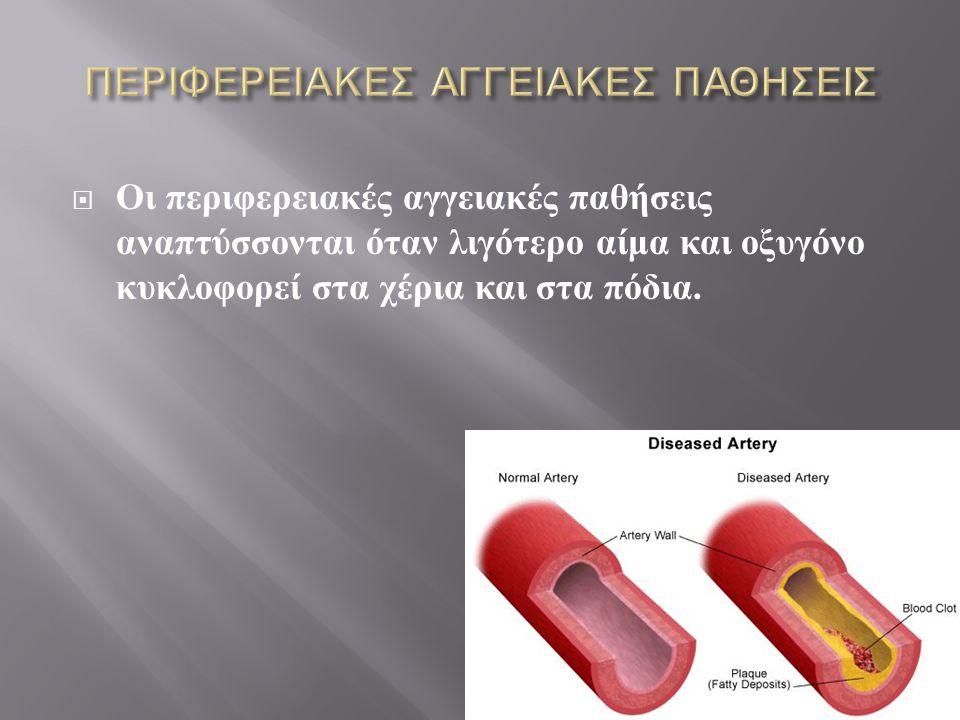  Οι περιφερειακές αγγειακές παθήσεις αναπτύσσονται όταν λιγότερο αίμα και οξυγόνο κυκλοφορεί στα χέρια και στα πόδια.