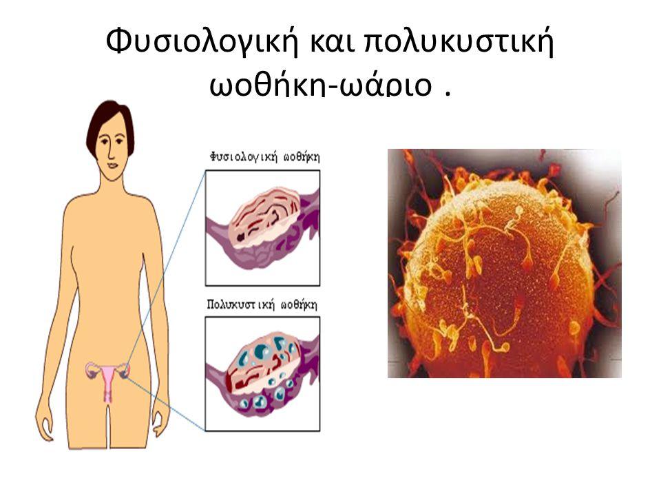 Φυσιολογική και πολυκυστική ωοθήκη-ωάριο.