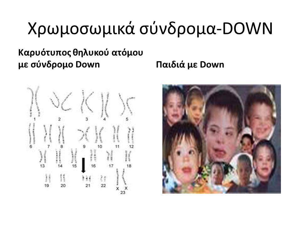 Χρωμοσωμικά σύνδρομα-DOWN Καρυότυπος θηλυκού ατόμου με σύνδρομο DownΠαιδιά με Down