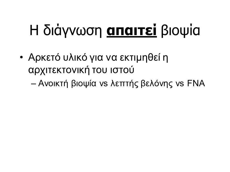 H διάγνωση απαιτεί βιοψία Αρκετό υλικό για να εκτιμηθεί η αρχιτεκτονική του ιστού –Ανοικτή βιοψία vs λεπτής βελόνης vs FNA