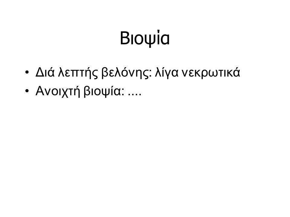 Βιοψία Διά λεπτής βελόνης: λίγα νεκρωτικά Ανοιχτή βιοψία:....