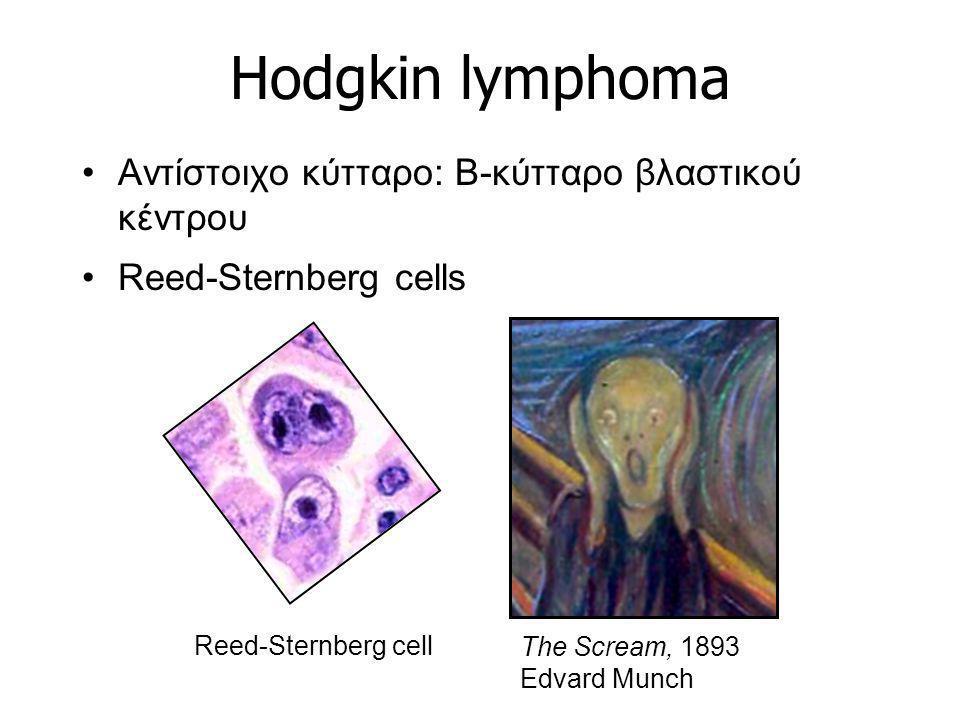 Hodgkin lymphoma Αντίστοιχο κύτταρο: B-κύτταρο βλαστικού κέντρου Reed-Sternberg cells The Scream, 1893 Edvard Munch Reed-Sternberg cell