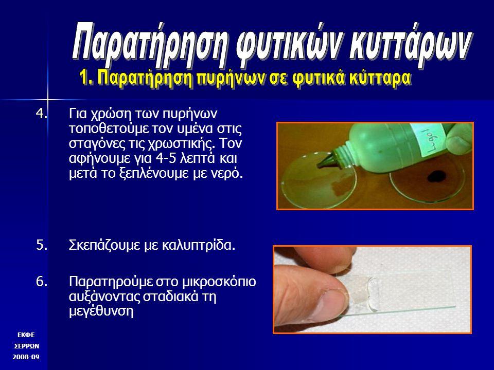 4. 4.Για χρώση των πυρήνων τοποθετούμε τον υμένα στις σταγόνες τις χρωστικής. Τον αφήνουμε για 4-5 λεπτά και μετά το ξεπλένουμε με νερό. 5. 5.Σκεπάζου
