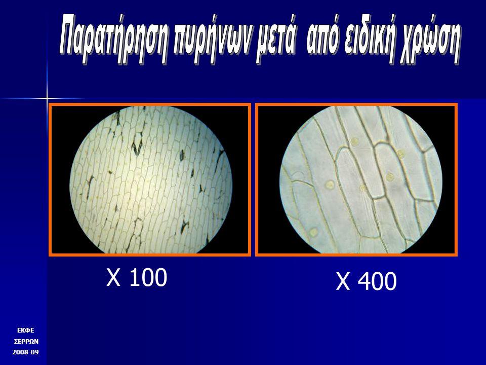X 400 zoom X 1000 zoom ΕΚΦΕ ΣΕΡΡΩΝ 2008-09