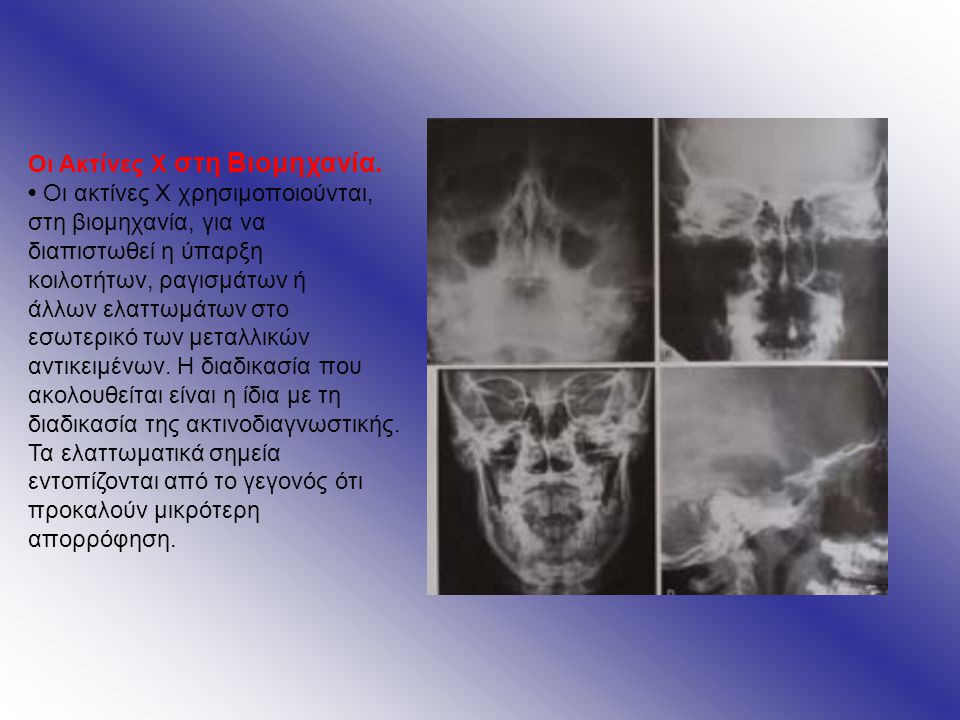 Αρνητικές συνέπειες των ακτινών Χ για το ανθρώπινο σώμα και βιολογικές βλάβες που προκαλούν: Οι ακτίνες Χ προκαλούν βλάβες στους οργανισμούς.