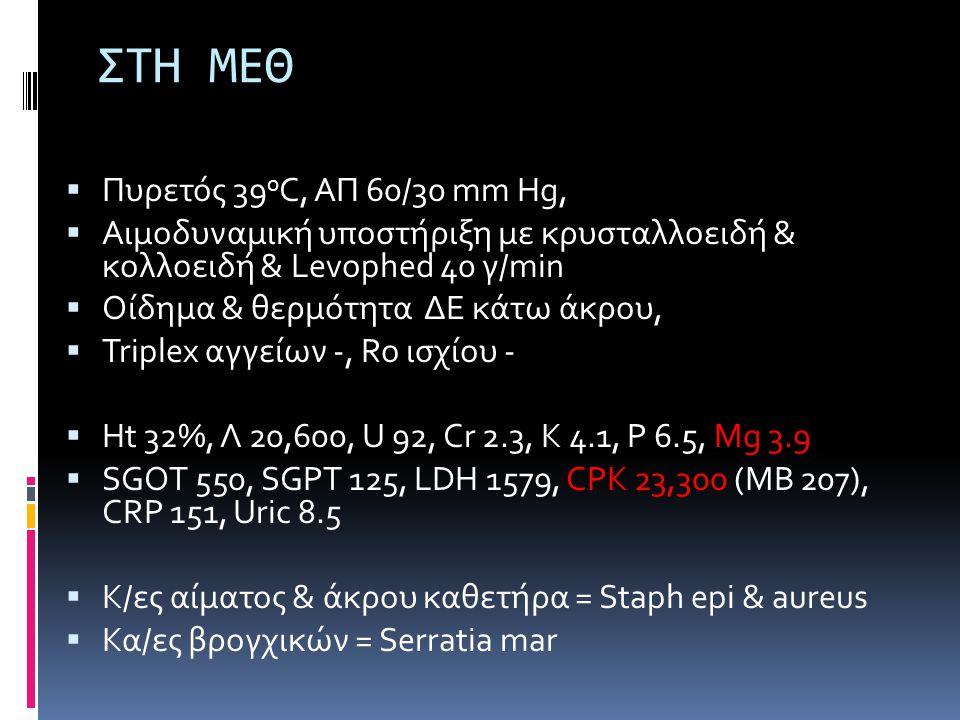 ΣΤΗ ΜΕΘ  Πυρετός 39 o C, ΑΠ 60/30 mm Hg,  Αιμοδυναμική υποστήριξη με κρυσταλλοειδή & κολλοειδή & Levophed 40 γ/min  Οίδημα & θερμότητα ΔΕ κάτω άκρου,  Triplex αγγείων -, Ro ισχίου -  Ht 32%, Λ 20,600, U 92, Cr 2.3, K 4.1, P 6.5, Mg 3.9  SGOT 550, SGPT 125, LDH 1579, CPK 23,300 (MB 207), CRP 151, Uric 8.5  Κ/ες αίματος & άκρου καθετήρα = Staph epi & aureus  Κα/ες βρογχικών = Serratia mar
