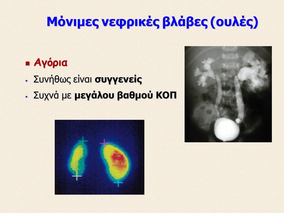 Μόνιμες νεφρικές βλάβες (ουλές) Μόνιμες νεφρικές βλάβες (ουλές) Αγόρια Αγόρια Συνήθως είναι συγγενείς Συνήθως είναι συγγενείς Συχνά με μεγάλου βαθμού ΚΟΠ Συχνά με μεγάλου βαθμού ΚΟΠ