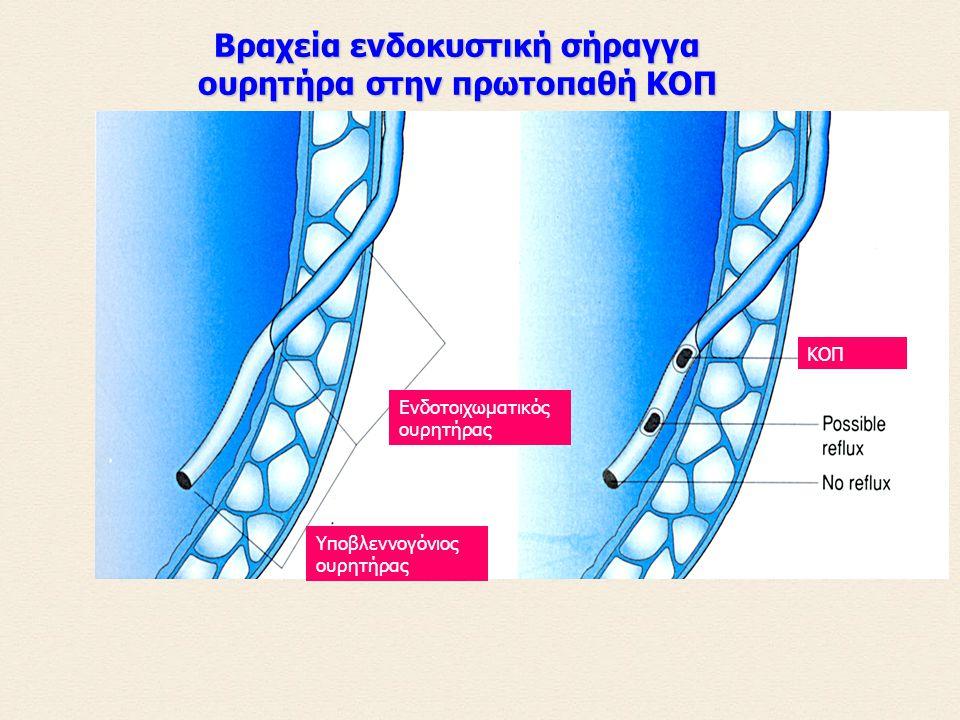 των ουρολοιμώξεων της οξείας πυελονεφρίτιδας των μονίμων νεφρικών βλαβών Επειδή η ΚΟΠ είναι πιο συχνή στα παιδιά με ουρολοιμώξεις, θεωρήθηκε ότι έχει ένα σημαντικό ρόλο στην παθογένεση: Σημασία της ΚΟΠ