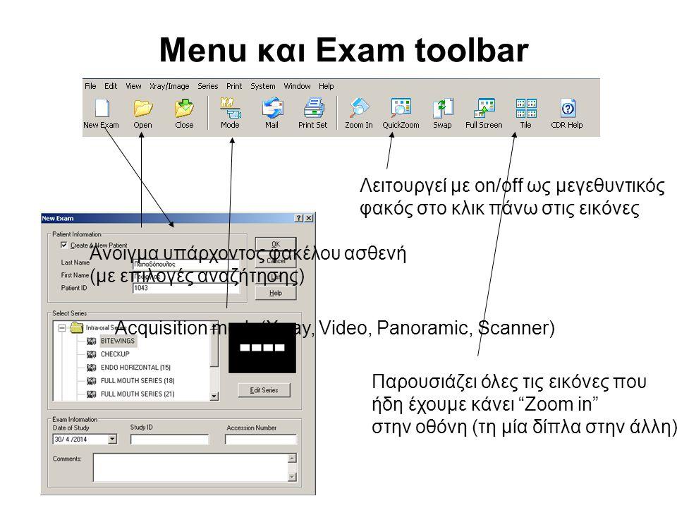 """Menu και Exam toolbar Λειτουργεί με on/off ως μεγεθυντικός φακός στο κλικ πάνω στις εικόνες Παρουσιάζει όλες τις εικόνες που ήδη έχουμε κάνει """"Zoom in"""