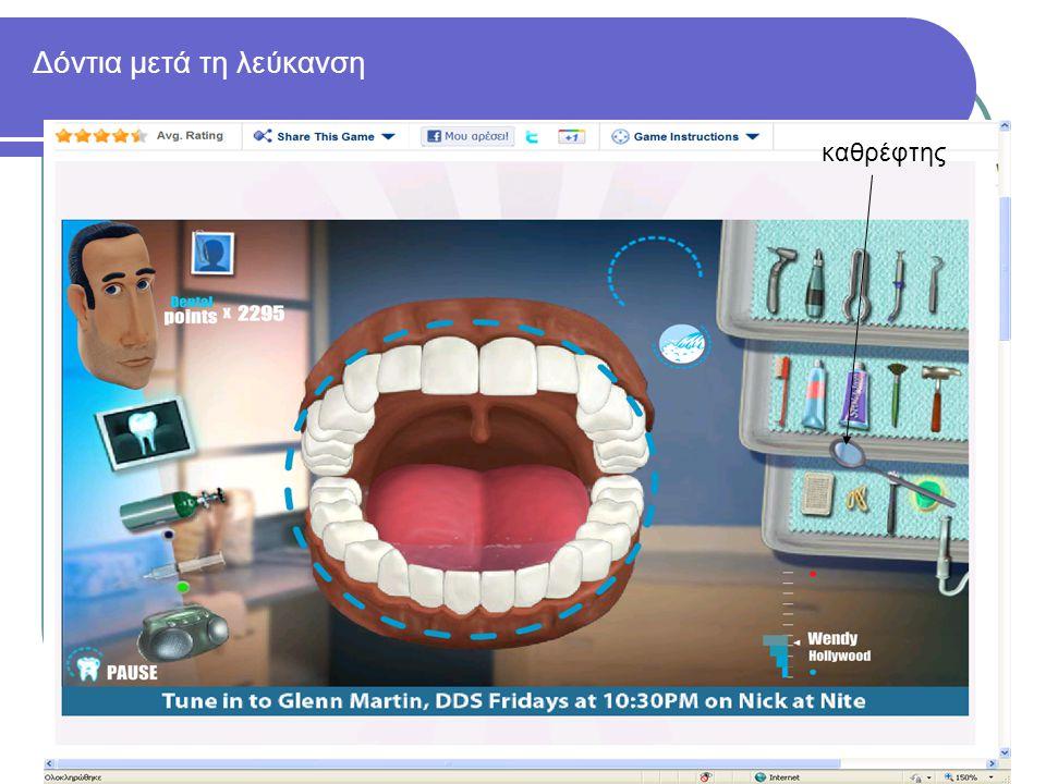 Δόντια μετά τη λεύκανση καθρέφτης