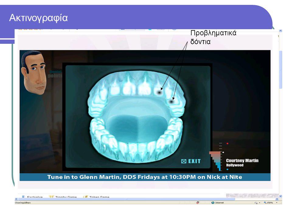 Ακτινογραφία Προβληματικά δόντια
