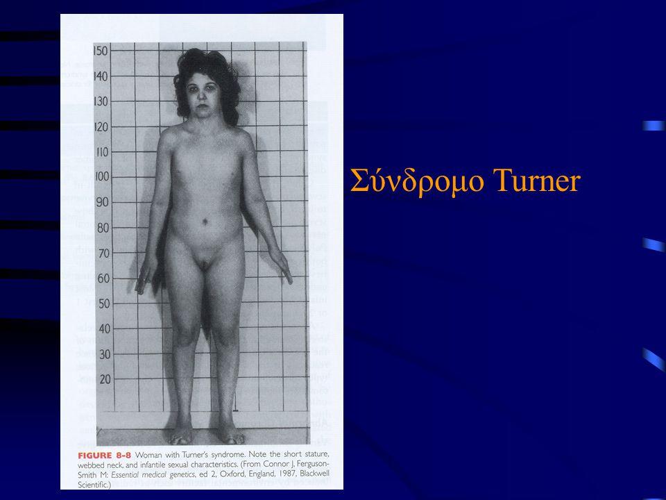 Σύνδρομο Turner