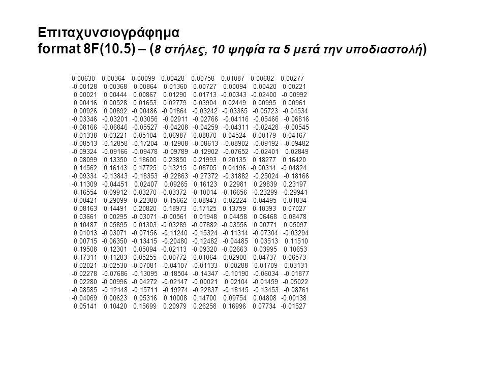 0.00630 0.00364 0.00099 0.00428 0.00758 0.01087 0.00682 0.00277 -0.00128 0.00368 0.00864 0.01360 0.00727 0.00094 0.00420 0.00221 0.00021 0.00444 0.00867 0.01290 0.01713 -0.00343 -0.02400 -0.00992 0.00416 0.00528 0.01653 0.02779 0.03904 0.02449 0.00995 0.00961 0.00926 0.00892 -0.00486 -0.01864 -0.03242 -0.03365 -0.05723 -0.04534 -0.03346 -0.03201 -0.03056 -0.02911 -0.02766 -0.04116 -0.05466 -0.06816 -0.08166 -0.06846 -0.05527 -0.04208 -0.04259 -0.04311 -0.02428 -0.00545 0.01338 0.03221 0.05104 0.06987 0.08870 0.04524 0.00179 -0.04167 -0.08513 -0.12858 -0.17204 -0.12908 -0.08613 -0.08902 -0.09192 -0.09482 -0.09324 -0.09166 -0.09478 -0.09789 -0.12902 -0.07652 -0.02401 0.02849 0.08099 0.13350 0.18600 0.23850 0.21993 0.20135 0.18277 0.16420 0.14562 0.16143 0.17725 0.13215 0.08705 0.04196 -0.00314 -0.04824 -0.09334 -0.13843 -0.18353 -0.22863 -0.27372 -0.31882 -0.25024 -0.18166 -0.11309 -0.04451 0.02407 0.09265 0.16123 0.22981 0.29839 0.23197 0.16554 0.09912 0.03270 -0.03372 -0.10014 -0.16656 -0.23299 -0.29941 -0.00421 0.29099 0.22380 0.15662 0.08943 0.02224 -0.04495 0.01834 0.08163 0.14491 0.20820 0.18973 0.17125 0.13759 0.10393 0.07027 0.03661 0.00295 -0.03071 -0.00561 0.01948 0.04458 0.06468 0.08478 0.10487 0.05895 0.01303 -0.03289 -0.07882 -0.03556 0.00771 0.05097 0.01013 -0.03071 -0.07156 -0.11240 -0.15324 -0.11314 -0.07304 -0.03294 0.00715 -0.06350 -0.13415 -0.20480 -0.12482 -0.04485 0.03513 0.11510 0.19508 0.12301 0.05094 -0.02113 -0.09320 -0.02663 0.03995 0.10653 0.17311 0.11283 0.05255 -0.00772 0.01064 0.02900 0.04737 0.06573 0.02021 -0.02530 -0.07081 -0.04107 -0.01133 0.00288 0.01709 0.03131 -0.02278 -0.07686 -0.13095 -0.18504 -0.14347 -0.10190 -0.06034 -0.01877 0.02280 -0.00996 -0.04272 -0.02147 -0.00021 0.02104 -0.01459 -0.05022 -0.08585 -0.12148 -0.15711 -0.19274 -0.22837 -0.18145 -0.13453 -0.08761 -0.04069 0.00623 0.05316 0.10008 0.14700 0.09754 0.04808 -0.00138 0.05141 0.10420 0.15699 0.20979 0.26258 0.16996 0.07734 -0.01527 Επιταχυνσιογράφημα format 8F(10.5