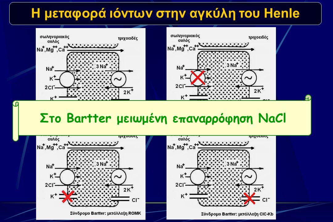 Η μεταφορά ιόντων στην αγκύλη του Henle Στο Bartter μειωμένη επαναρρόφηση NaCl