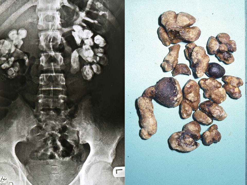 Λ ίθοι στρουβίτη - ΝΗ 3 PO 4 Mg - 15-20% των λίθων, κύρια αιτία των κοραλλιοειδών λίθων - Δημιουργούνται σε ασθενείς με χρόνια λοίμωξη όπου συνυπάρχει