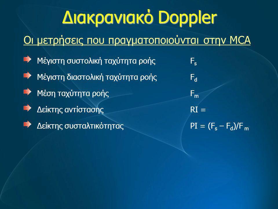 Διακρανιακό Doppler Μέγιστη συστολική ταχύτητα ροής F s Μέγιστη διαστολική ταχύτητα ροής F d Μέση ταχύτητα ροήςF m Δείκτης αντίστασης RI = Δείκτης συσ