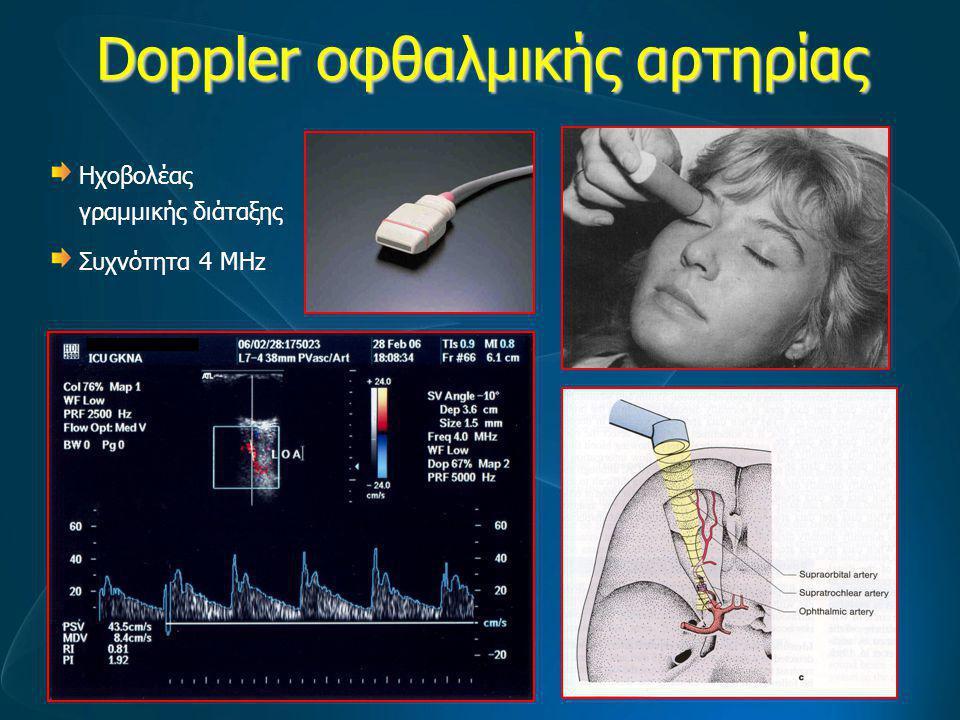 Doppler οφθαλμικής αρτηρίας Ηχοβολέας γραμμικής διάταξης Συχνότητα 4 MHz