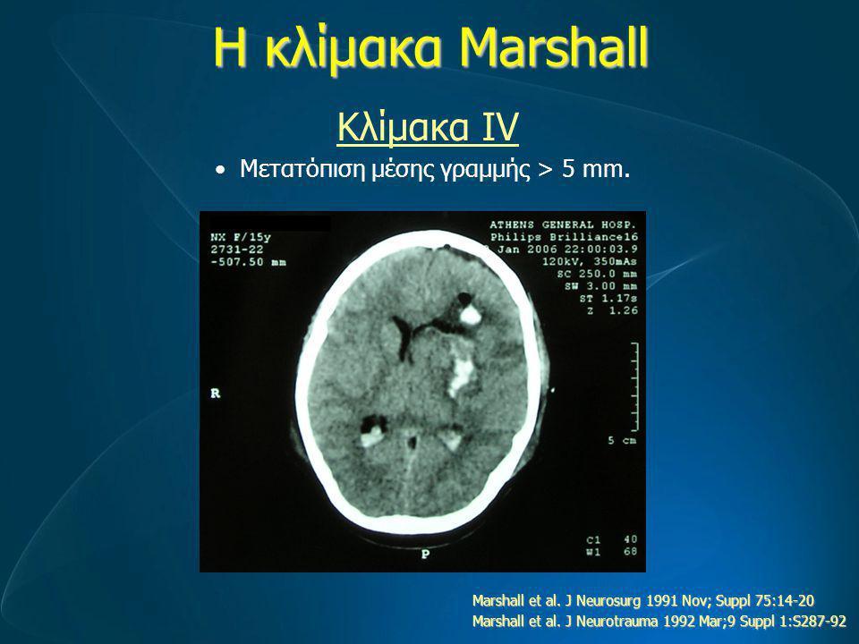 Η κλίμακα Marshall Μετατόπιση μέσης γραμμής > 5 mm. Κλίμακα ΙV Marshall et al. J Neurosurg 1991 Nov; Suppl 75:14-20 Marshall et al. J Neurotrauma 1992