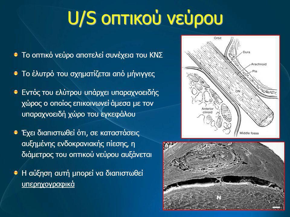 U/S οπτικού νεύρου Το οπτικό νεύρο αποτελεί συνέχεια του ΚΝΣ Το έλυτρό του σχηματίζεται από μήνιγγες Εντός του ελύτρου υπάρχει υπαραχνοειδής χώρος ο ο