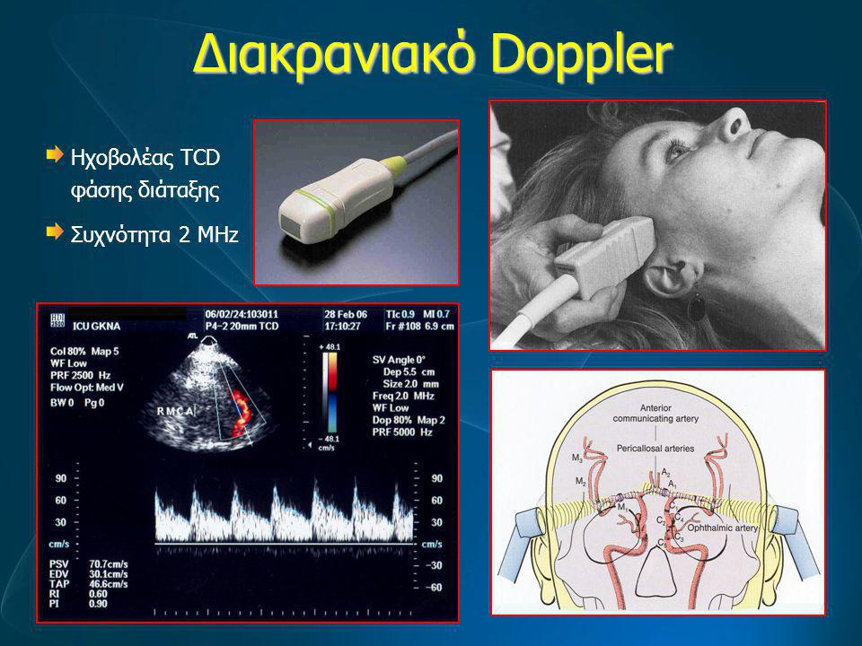 Διακρανιακό Doppler H MCA χορηγεί το 70-80% της συνολικής αιμάτωσης του σύστοιχου ημισφαιρίου → Η κατεύθυνση της MCA σχηματίζει άριστη γωνία με τη δέσμη των υπερήχων → πολύ αξιόπιστο σήμα Doppler → Το αγγείο βρίσκεται κοντά στο κροταφικό οστό → υψηλή σχέση σήματος / θόρυβο.