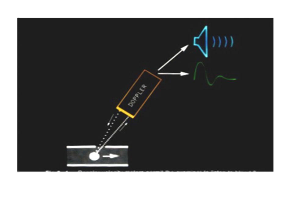 Εγχρωμο Doppler : Eνδείξεις στένωσης περιφερειακής αρτηρίας.