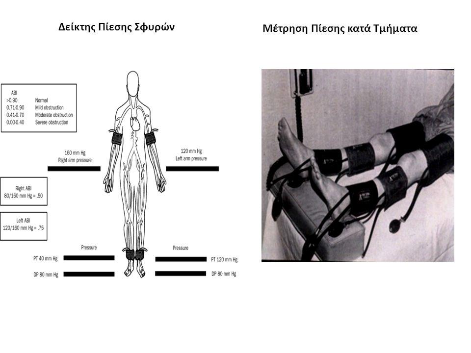 Εγχρωμο Doppler : Διάγνωση Ψευδοανευρύσματος (Ψευδοανεύρυσμα μηριαίας αρτηρίας μετά από καθετηριασμό) Σφύζουσα μάζα σε θέση παρακέντησης Αιφνίδιο άλγος Φύσημα