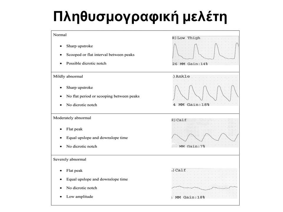 Από όλες τις μη αιματηρές μεθόδους ο Δείκτης Πίεσης Σφυρών, η μέτρηση της Πίεσης κατά Τμήματα και η ανάλυση των κυματομορφών της πληθυσμογραφίας είναι οι μόνες τεχνικές οι οποίες παρέχουν αιμοδυναμικές πληροφορίες για την αιμάτωση του άκρου