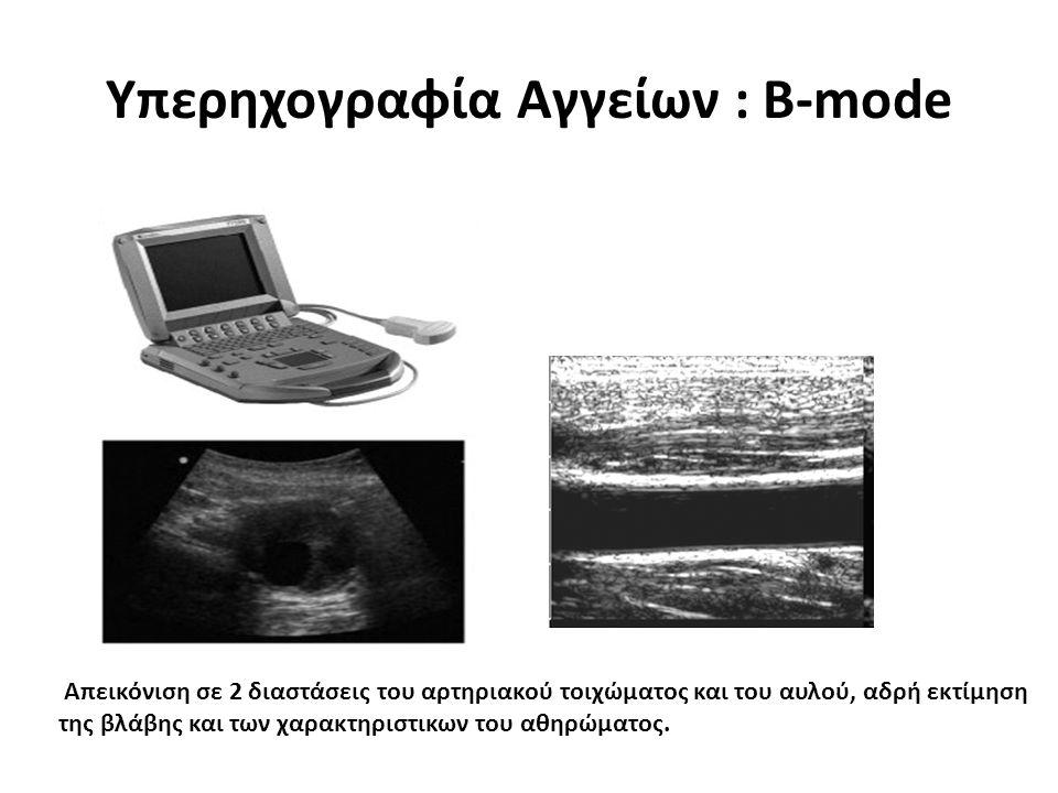 Seminars in Vascular Surgery Volume 22, Issue 4Seminars in Vascular Surgery Volume 22, Issue 4, December 2009, Pages 252-260