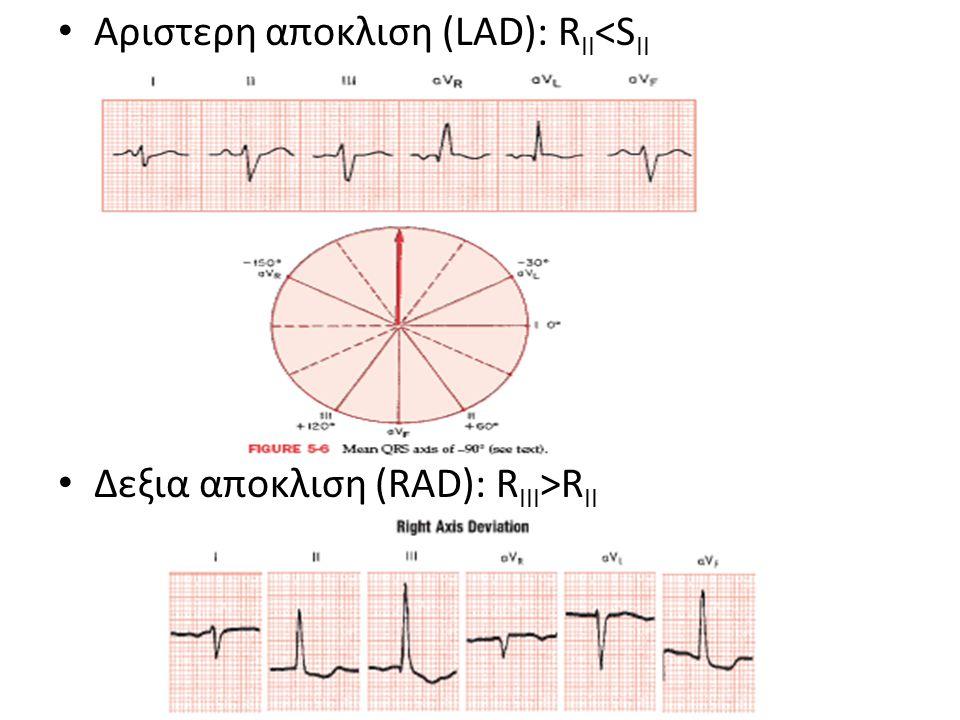 Αριστερη αποκλιση (LAD): R II <S II Δεξια αποκλιση (RAD): R III >R II