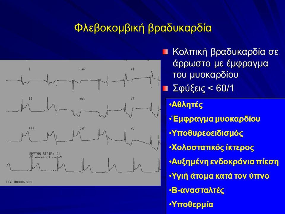 Φλεβοκομβική βραδυκαρδία Κολπική βραδυκαρδία σε άρρωστο με έμφραγμα του μυοκαρδίου Σφύξεις < 60/1 Αθλητές Έμφραγμα μυοκαρδίου Υποθυρεοειδισμός Χολοστατικός ίκτερος Αυξημένη ενδοκράνια πίεση Υγιή άτομα κατά τον ύπνο Β-ανασταλτές Υποθερμία
