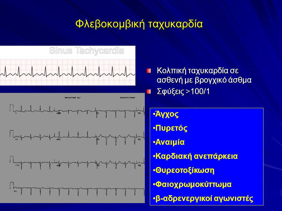 Φλεβοκομβική ταχυκαρδία Κολπική ταχυκαρδία σε ασθενή με βρογχικό άσθμα Σφύξεις >100/1 Άγχος Πυρετός Αναιμία Καρδιακή ανεπάρκεια Θυρεοτοξίκωση Φαιοχρωμοκύττωμα β-αδρενεργικοί αγωνιστές