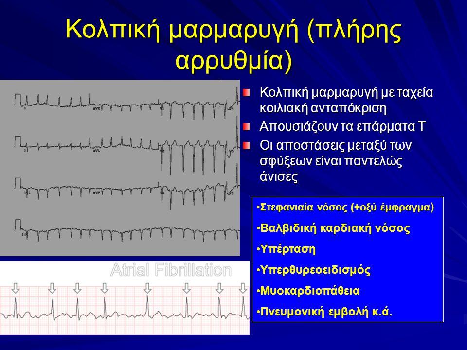 Κολπική μαρμαρυγή (πλήρης αρρυθμία) Κολπική μαρμαρυγή με ταχεία κοιλιακή ανταπόκριση Απουσιάζουν τα επάρματα Τ Οι αποστάσεις μεταξύ των σφύξεων είναι παντελώς άνισες Στεφανιαία νόσος (+οξύ έμφραγμα ) Βαλβιδική καρδιακή νόσος Υπέρταση Υπερθυρεοειδισμός Μυοκαρδιοπάθεια Πνευμονική εμβολή κ.ά.