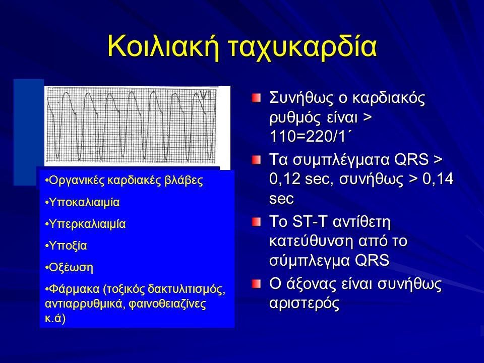 Κοιλιακή ταχυκαρδία Συνήθως ο καρδιακός ρυθμός είναι > 110=220/1΄ Τα συμπλέγματα QRS > 0,12 sec, συνήθως > 0,14 sec To ST-T αντίθετη κατεύθυνση από το σύμπλεγμα QRS O άξονας είναι συνήθως αριστερός Οργανικές καρδιακές βλάβες Υποκαλιαιμία Υπερκαλιαιμία Υποξία Οξέωση Φάρμακα (τοξικός δακτυλιτισμός, αντιαρρυθμικά, φαινοθειαζίνες κ.ά)