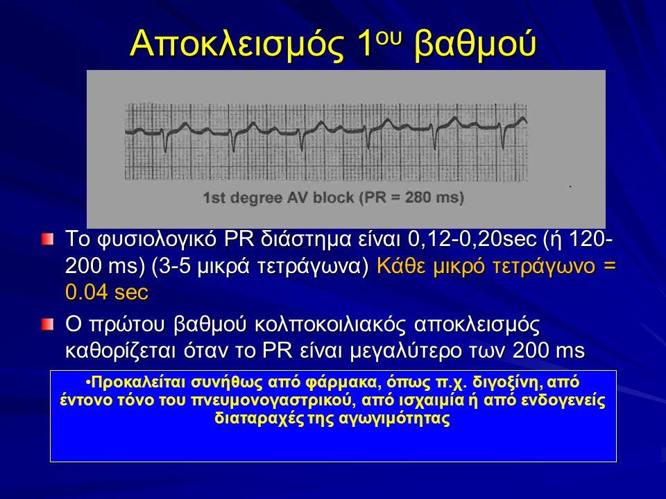 Αποκλεισμός 1 ου βαθμού Το φυσιολογικό PR διάστημα είναι 0,12-0,20sec (ή 120- 200 ms) (3-5 μικρά τετράγωνα) Κάθε μικρό τετράγωνο = 0.04 sec O πρώτου βαθμού κολποκοιλιακός αποκλεισμός καθορίζεται όταν το PR είναι μεγαλύτερο των 200 ms Προκαλείται συνήθως από φάρμακα, όπως π.χ.