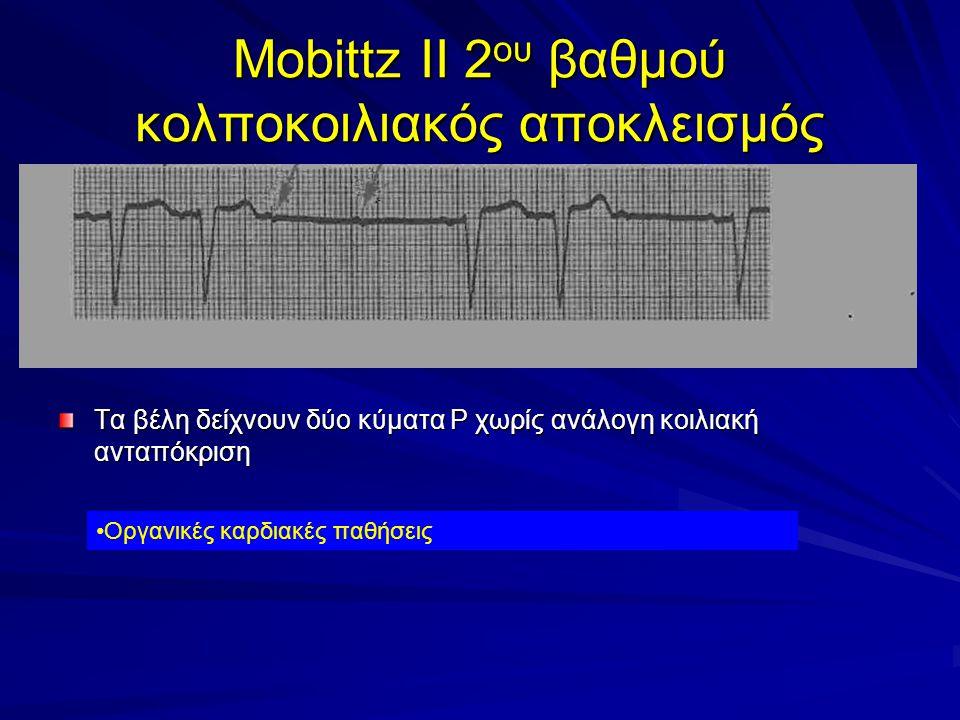 Mobittz II 2 ου βαθμού κολποκοιλιακός αποκλεισμός Τα βέλη δείχνουν δύο κύματα Ρ χωρίς ανάλογη κοιλιακή ανταπόκριση Οργανικές καρδιακές παθήσεις
