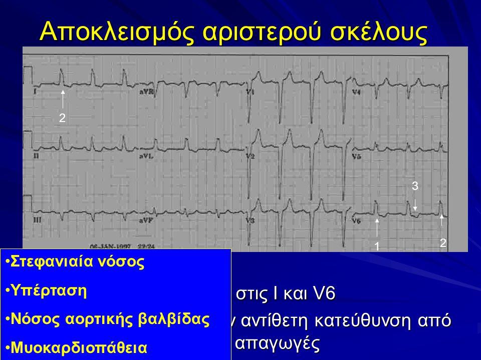 Αποκλεισμός αριστερού σκέλους 1.QRS > 0,12 sec 2.