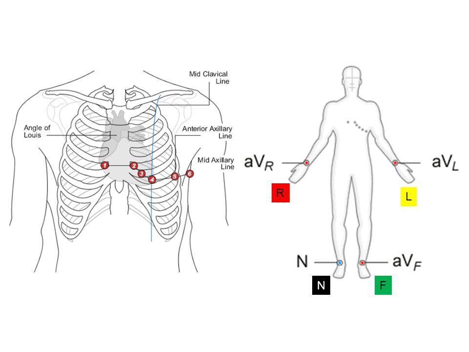 Κλασσικός ρυθμός Wenckebach Mobitz I Παρατηρείται προοδευτική επιμήκυνση των PR διαστημάτων μέχρι να επακολουθήσει μία παύλα Το διάστημα της παύλας είναι μικρότερο από 2 RR διαστήματα Φυσιολογικά άτομα Αθλητές Διέγερση του πνευμονογαστρικού Φάρμακα (δακτυλίτιδα, κινιδίνη, β-ανασταλτές Ρευματικός πυρετός Μυοκαρδίτιδα κ.ά.
