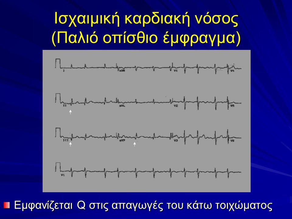 Ισχαιμική καρδιακή νόσος (Παλιό οπίσθιο έμφραγμα) Εμφανίζεται Q στις απαγωγές του κάτω τοιχώματος