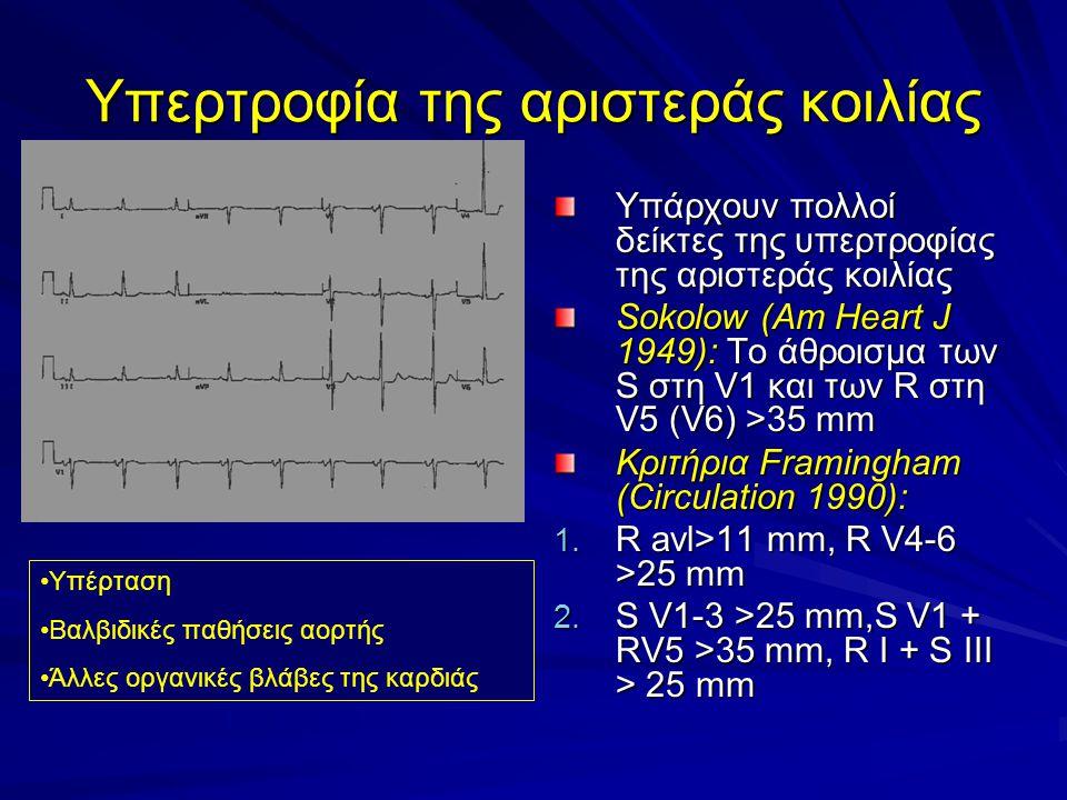 Υπερτροφία της αριστεράς κοιλίας Υπάρχουν πολλοί δείκτες της υπερτροφίας της αριστεράς κοιλίας Sokolow (Am Heart J 1949): Το άθροισμα των S στη V1 και των R στη V5 (V6) >35 mm Κριτήρια Framingham (Circulation 1990): 1.