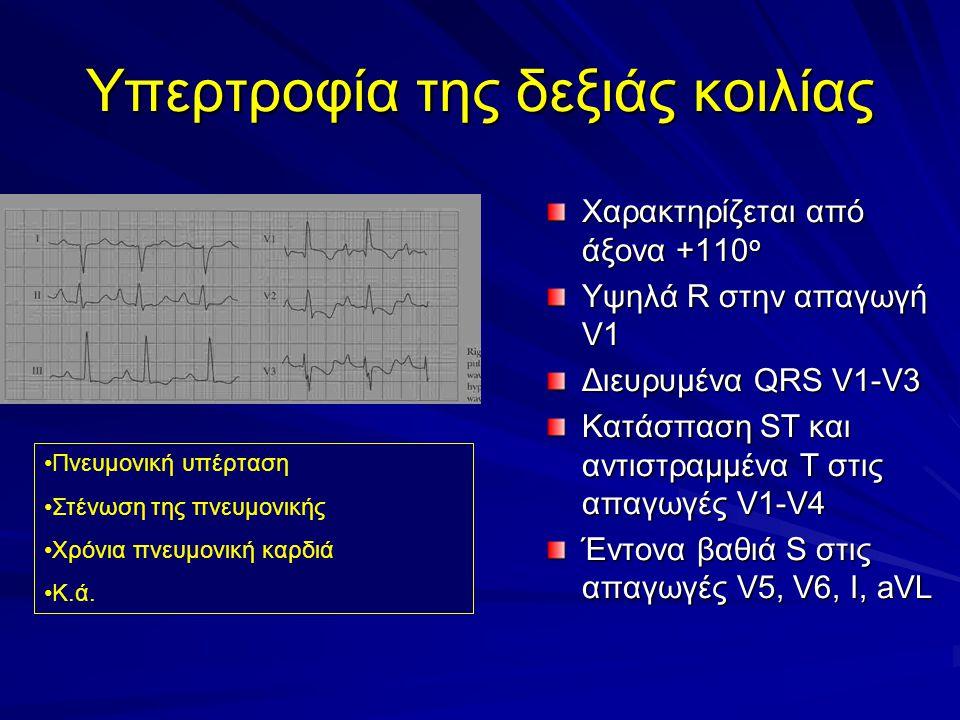 Υπερτροφία της δεξιάς κοιλίας Χαρακτηρίζεται από άξονα +110 ο Υψηλά R στην απαγωγή V1 Διευρυμένα QRS V1-V3 Κατάσπαση ST και αντιστραμμένα T στις απαγωγές V1-V4 Έντονα βαθιά S στις απαγωγές V5, V6, I, aVL Πνευμονική υπέρταση Στένωση της πνευμονικής Χρόνια πνευμονική καρδιά Κ.ά.